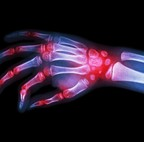 Arthritis Pain is Debilitating. Search for RA Treatments