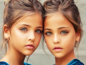 """These Twins Were Named """"Most Beautiful in the World,"""" Wait Till You See Them Now"""