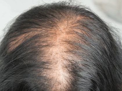 40% Suffer with Thin Hair! Use This Shampoo for 1 Month [works Miracles]